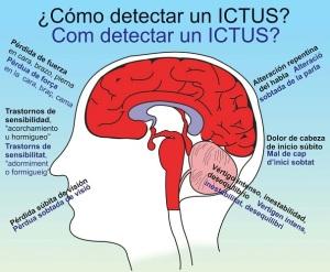 Detectar un Ictus